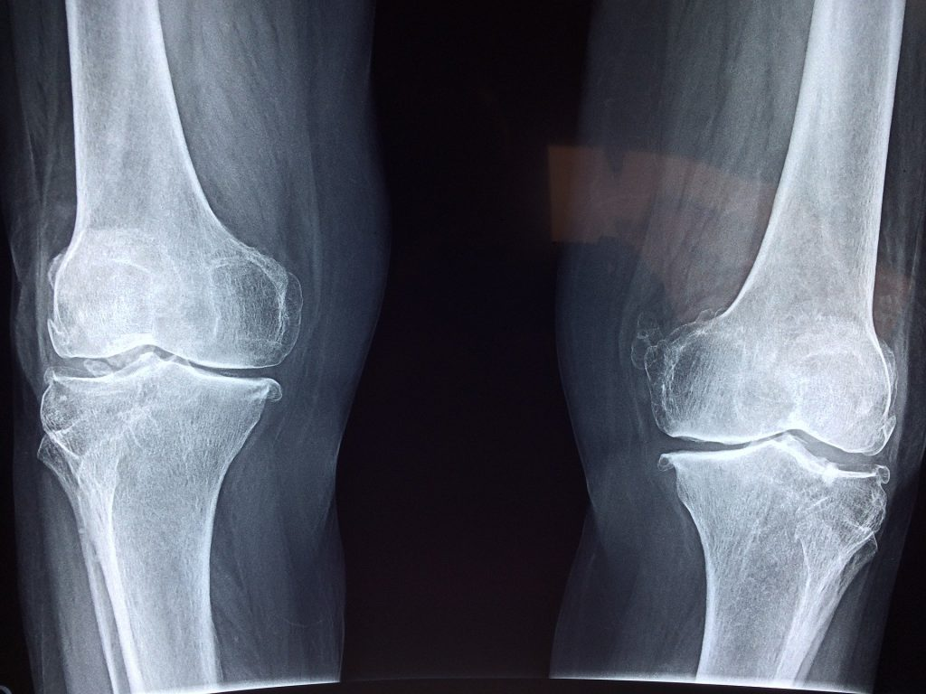 How Physiotherapy Can Help You with Your  Osteoarthritic Knee